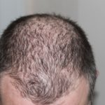 What causes clogged pores on scalp?