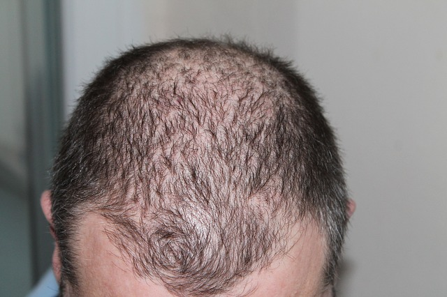 Image result for Can Seborrheic Dermatitis Cause Hair Loss?