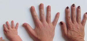 What do nail ridges mean?