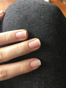 How to fix yellow nails from nail polish