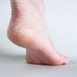 Does paraffin wax help cracked heels?
