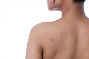 What causes clogged pores on back?