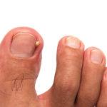Will bleach get rid of nail fungus?