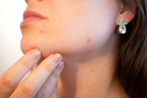 What is the difference between a zit and pimple?