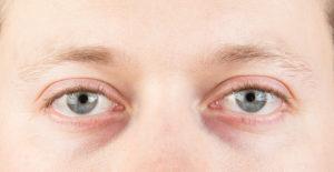 Dark Circle Laser Treatment Side Effects
