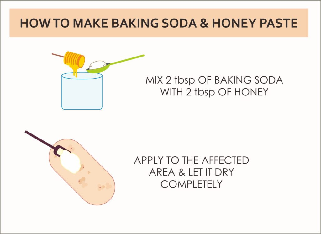 how to use baking soda for hives dermanities. Black Bedroom Furniture Sets. Home Design Ideas