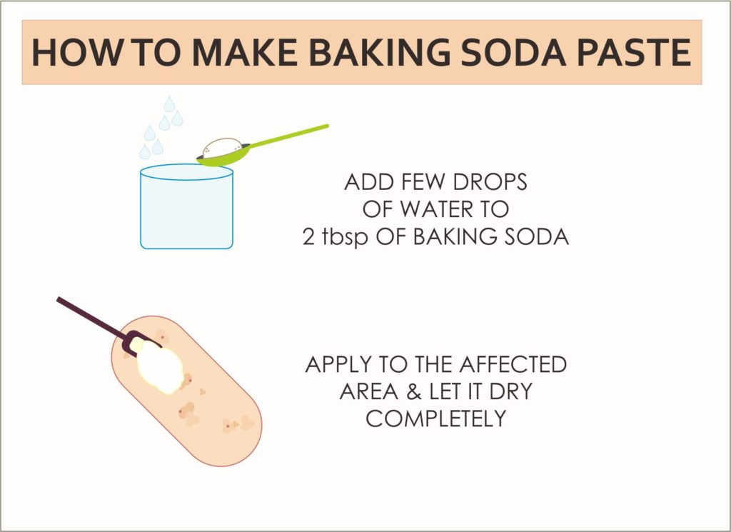 baking-soda-paste-for-hives
