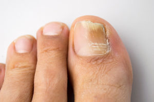 How To Get Rid Of Toenail Fungus Under The Nail