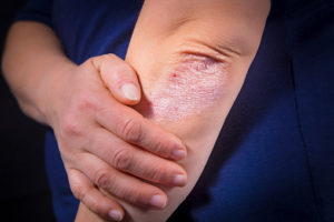 Can Stress Cause Psoriasis?