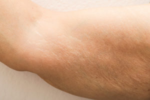 How To Get Rid Of Wrinkles On Your Arms ?