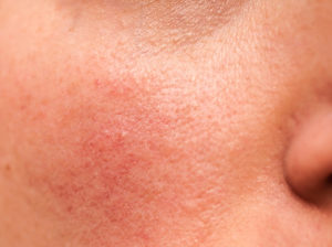 Home Remedy For Rosacea Flare Up