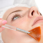 BEST CHEMICAL PEELS FOR WRINKLES