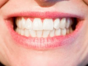 How to Remove Tartar From Your Teeth Fast?