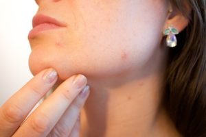 5 Best Home Remedies For Blemishes