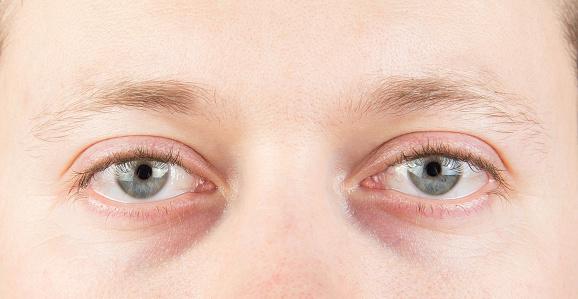 What Causes Dark Circles Under Eye - Dermanities